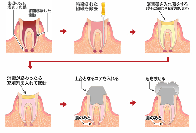 根の治療(根管治療)
