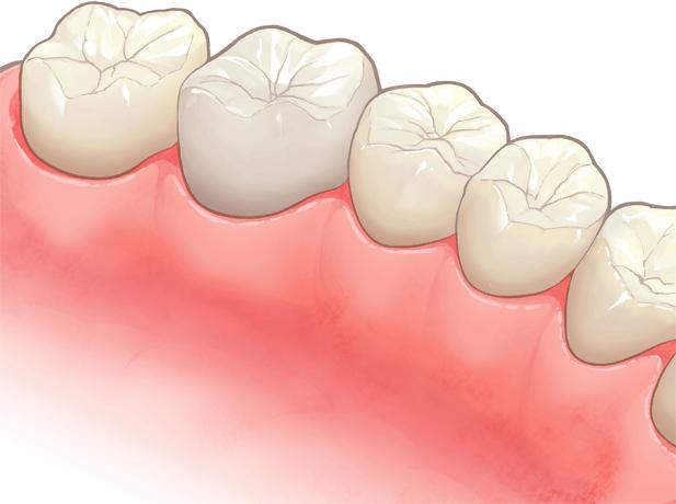 硬質レジン(歯科用プラスチック)