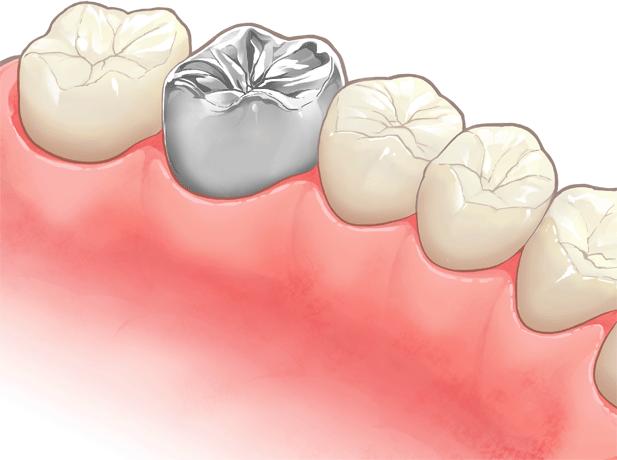 金属冠(銀歯)