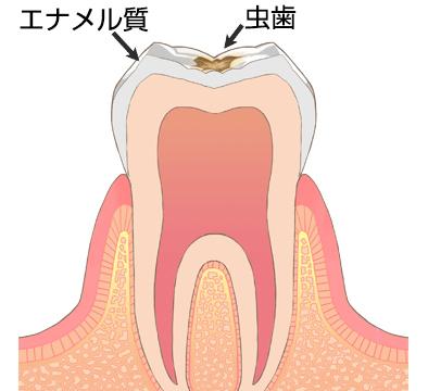 虫歯・う蝕の進行